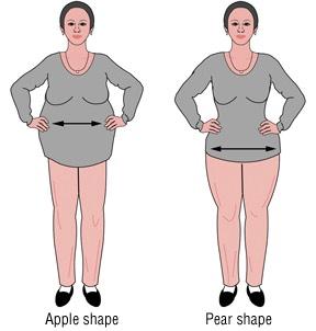 obesity-37